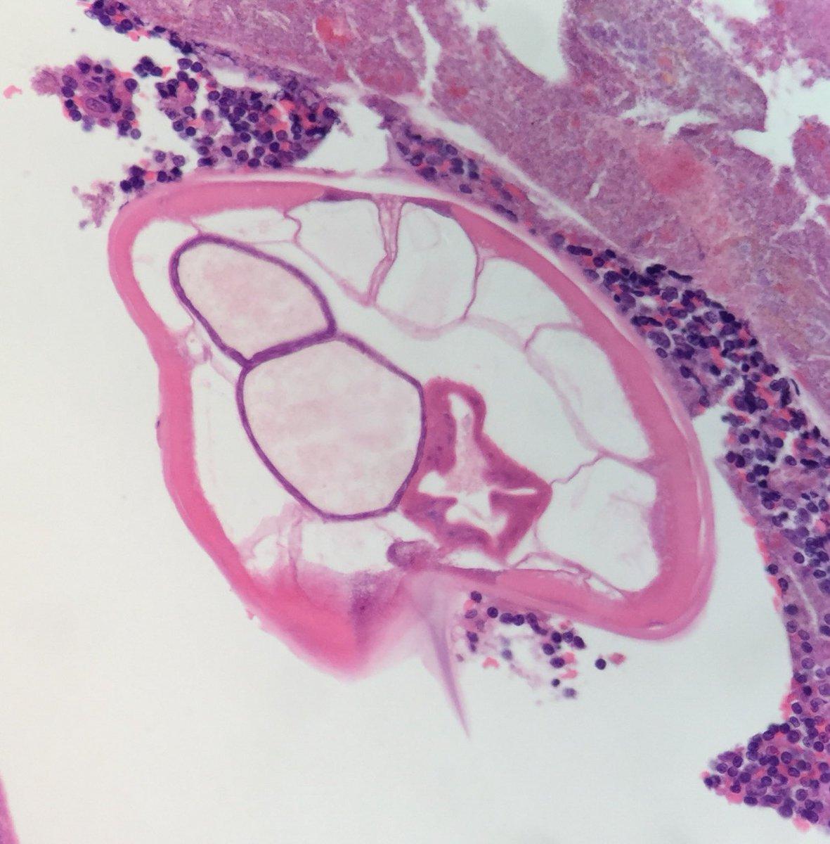 enterobius vermicularis histopathology