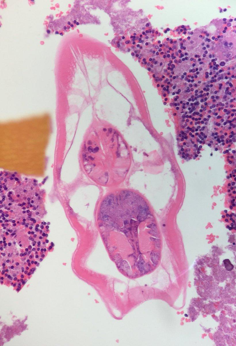 condiloame tratament wart foot black dots