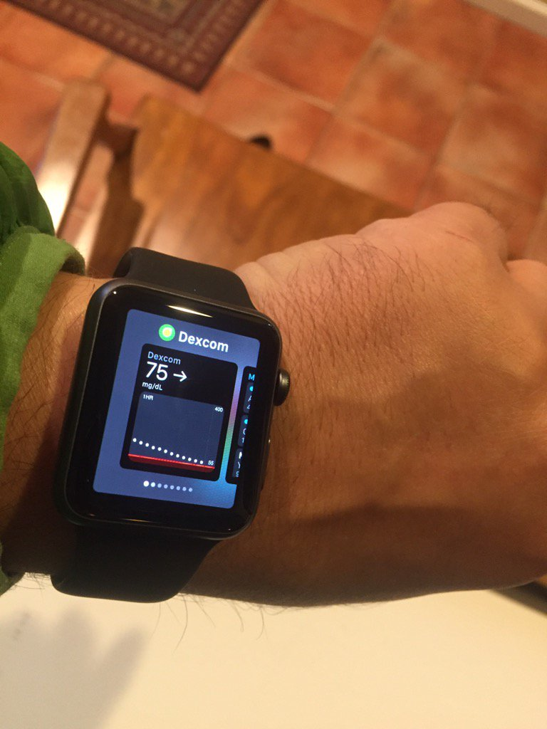 Amazing - thanks to Dexcom and a new Apple Watch I can get real time glucose readings by the turn of my wrist https://t.co/Mu2WAQQNsZ