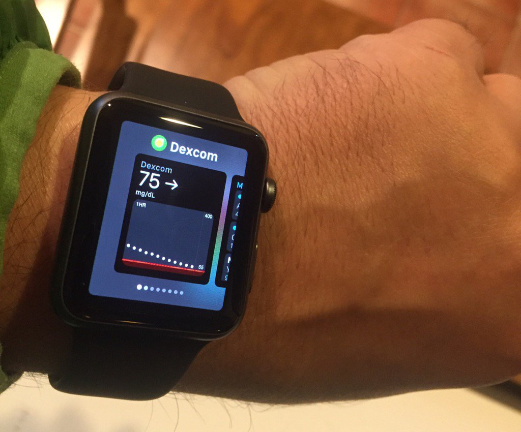 Amazing - thanks to Dexcom and a new Apple Watch I can get real time glucose readings by the turn of my wrist .. https://t.co/KUd1ie1RYU