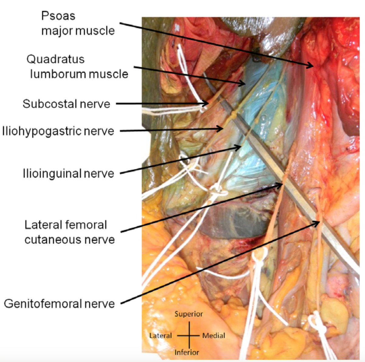 By Photo Congress || Quadratus Lumborum block