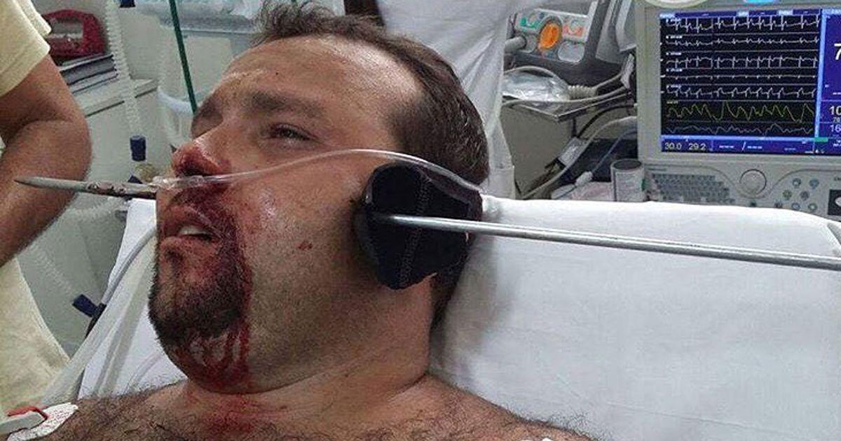 Man krijgt speer door zijn hoofd tijdens speervissen