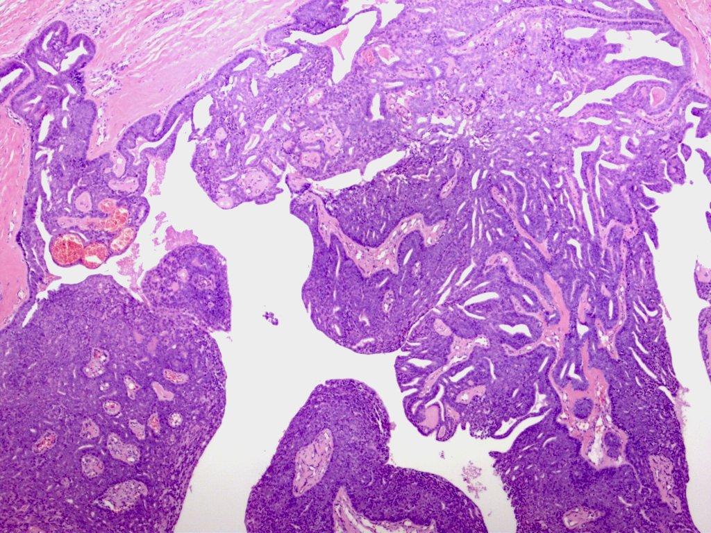 adenocarcinoma dansk
