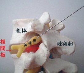 注射 効き目 神経 根 ブロック [mixi]神経根ブロック注射の経験者の方、教えてく