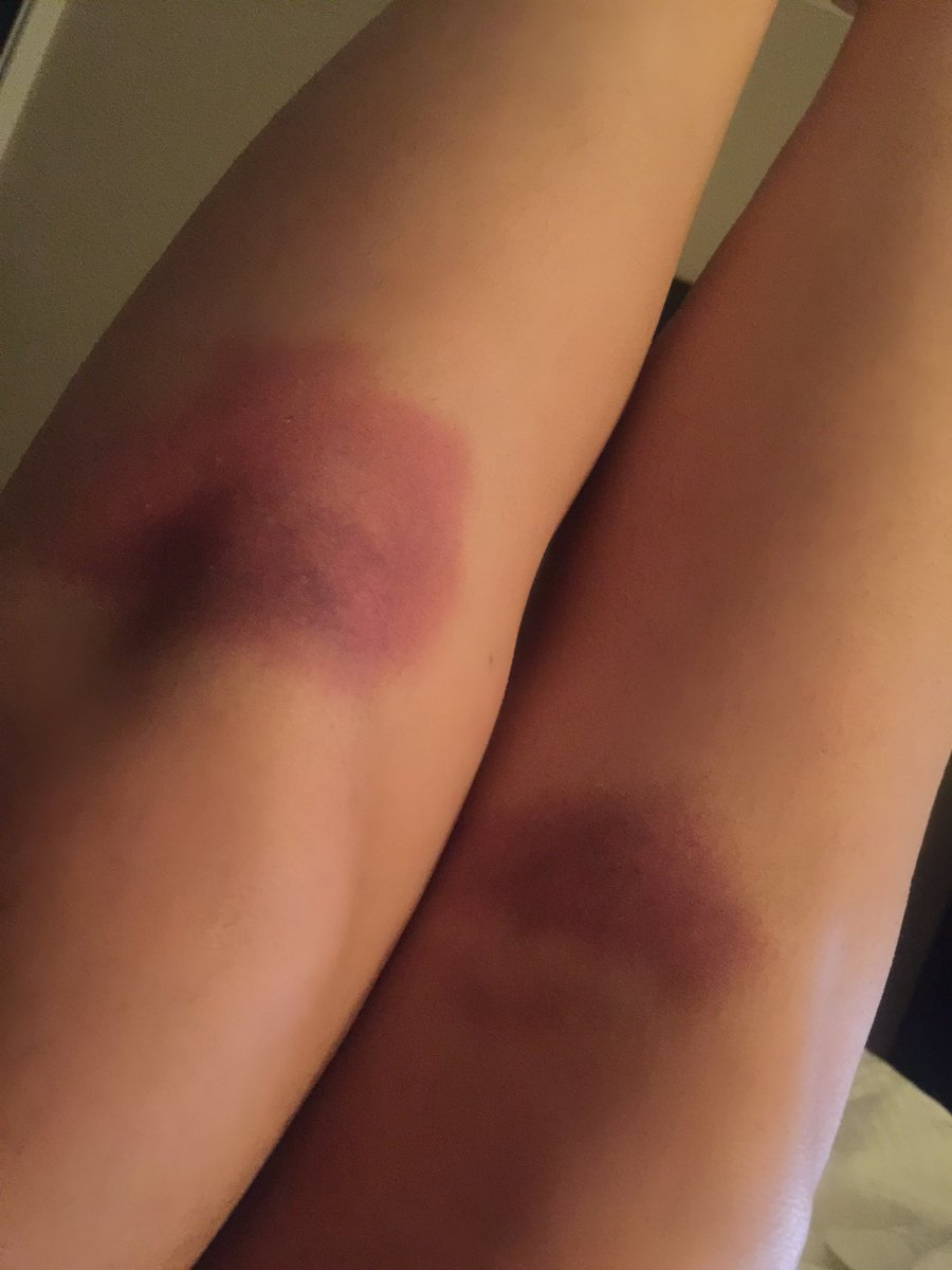 My knees after izzy demon scene #ShadowhuntersChat https://t.co/Tk85hZ...
