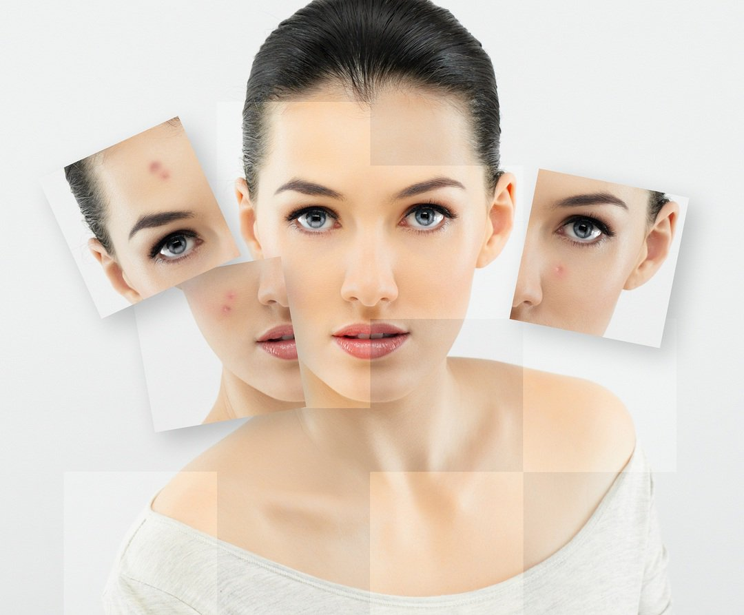 Nitevaya lift of face and body - what do we know about it