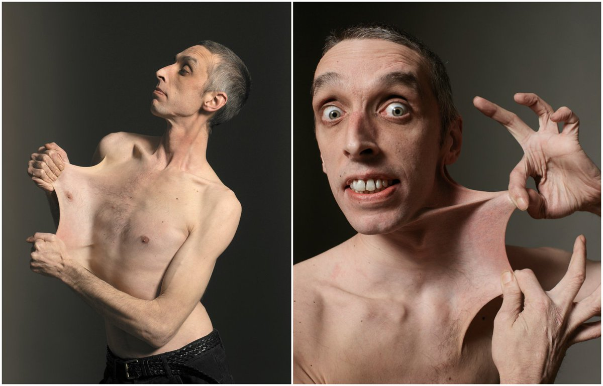 """Guinness World Records on Twitter: """"Our #FlashbackFriday goes to record  holder Garry Turner, who was given the title world's stretchiest skin in  1999 > https://t.co/5pG8V2RJcR… https://t.co/ducUaJWR38"""""""