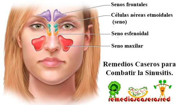 combatir+la+sinusitis+con+remedios+caseros