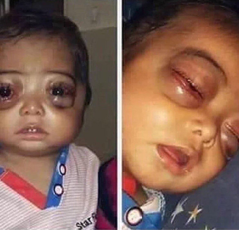 طفل مصاب بالسرطان .. ماياخذ من وقتك شي لو سويت #رتويت وخليت غيرك يدعي له / الله يشافيه