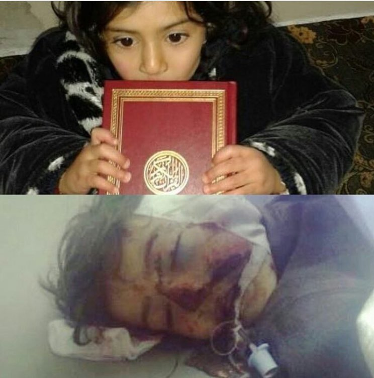 #Child #Rama Hisham #Daraa she is 8 years old she was hit by shrapnel from cluster bombs by #assad bombardment #children #syria #Russia #هام<br>http://pic.twitter.com/0ua4KbBDvO