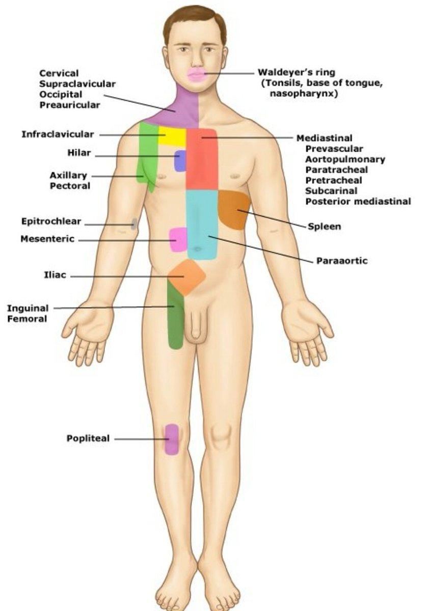 Internal Medicine On Twitter Lymph Node Regions In Lymphoma