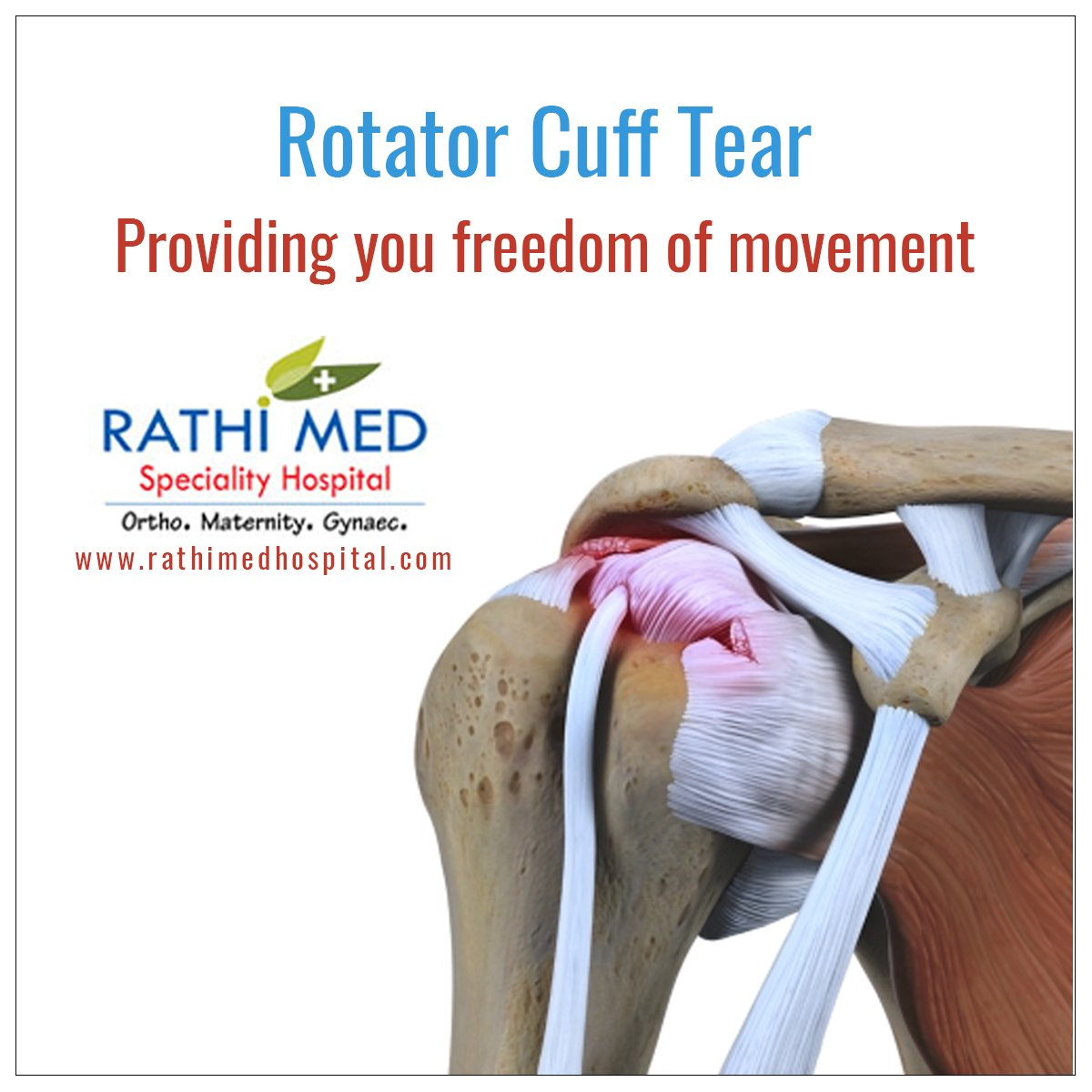 rotator_cuff hashtag on Twitter