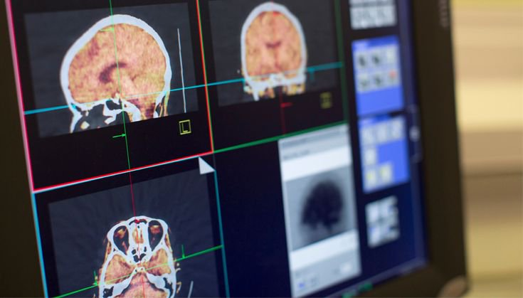 test Twitter Media - From MS to Dementia, discover the equipment helping researchers @DoM_Imperial Clinical Imaging Facility https://t.co/fYLYMLHyi7 https://t.co/c27fTqj1rG