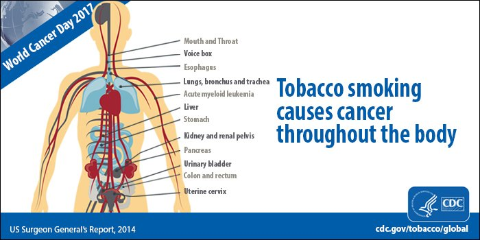 #Tobacco #smokers are at increased risk for 12 types of #cancer.  #WorldCancerDay Learn more https://t.co/xG7eD2AvCA https://t.co/hXtHruY6z3