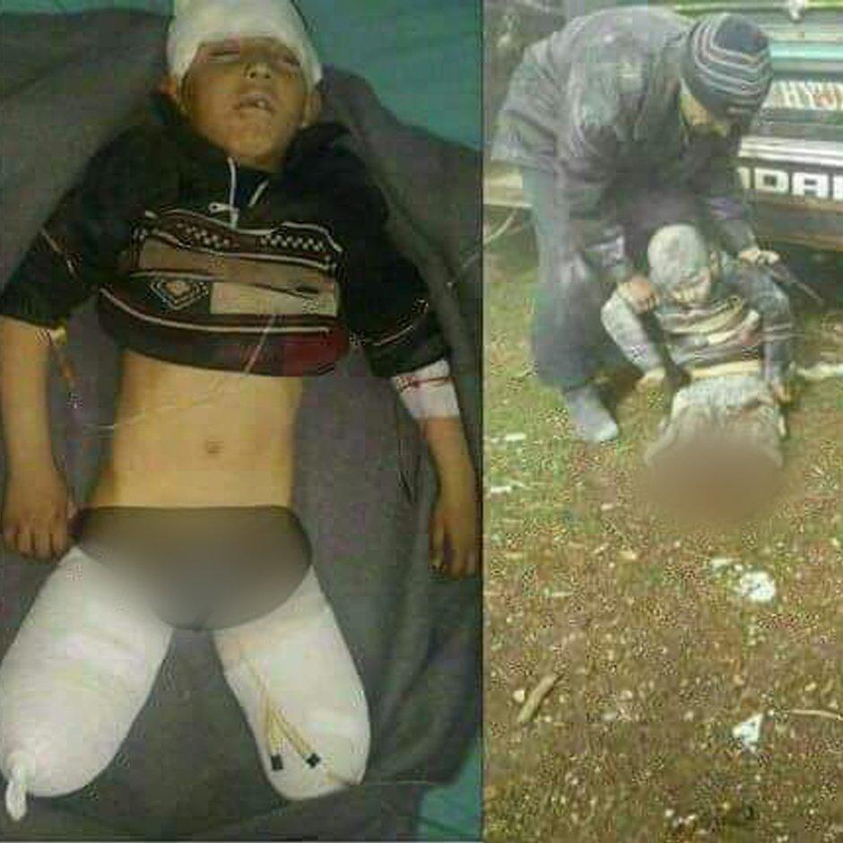 Le nouveau visage de l&#39;horreur en #Syrie. #Aylan &amp; #Omran hier, Abdelbasset aujourd&#39;hui, à qui le tour mtn ? Jusqu&#39;à qd, jusqu&#39;à qd ?<br>http://pic.twitter.com/vd6U3GJq4Q