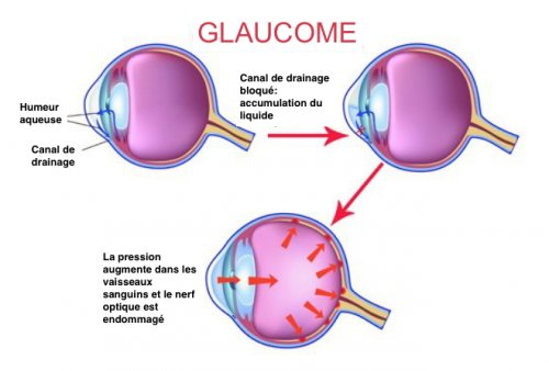 #glaucome hashtag on Twitter