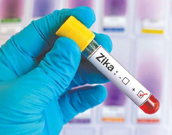 Febbre da virus Zika - Ministero della Salute