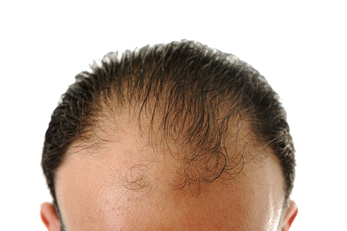 CONFIRMED: This is the one protein you need to eat to stop hair loss. http://bit.ly/2knQqWK