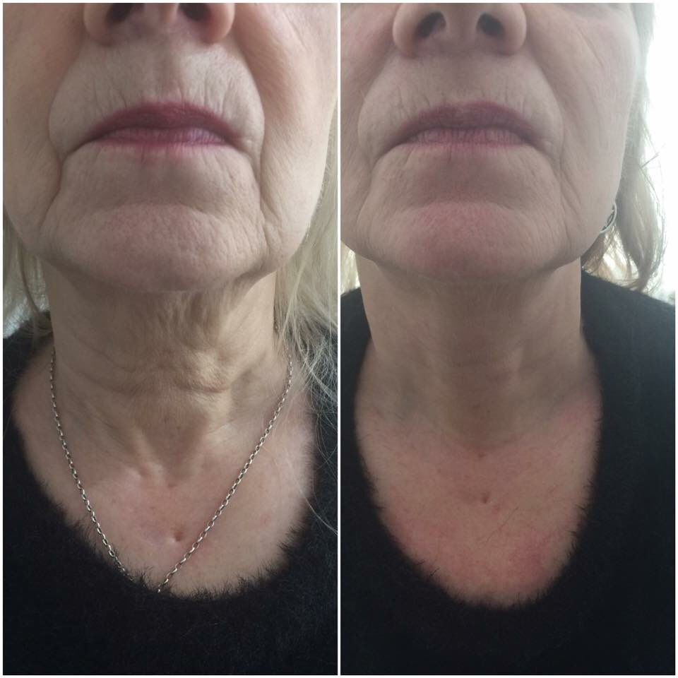 Radio Frequency 3-D Skin Tightening £50 Treat SPECIAL OFFER 07931584162 #skincare #wrexham #saggy #face #newme #skintightening #skintight<br>http://pic.twitter.com/gMgJGsR0HK