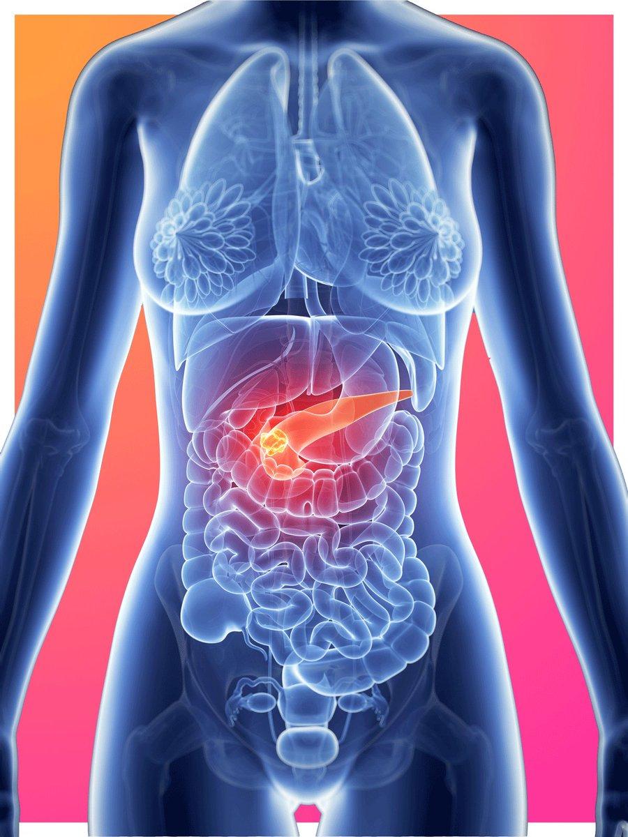 Pancreatic cancer-Must Know Symptoms  https://www. yahoo.com/beauty/pancrea tic-cancer-symptoms-silent-killer-160800789.html?soc_src=social-sh&amp;soc_trk=tw &nbsp; …  via @YahooBeauty #blogger #gamedev #android #unity3d #TOI #ABP #iron #brain #cc<br>http://pic.twitter.com/7WpX3Gmjdb