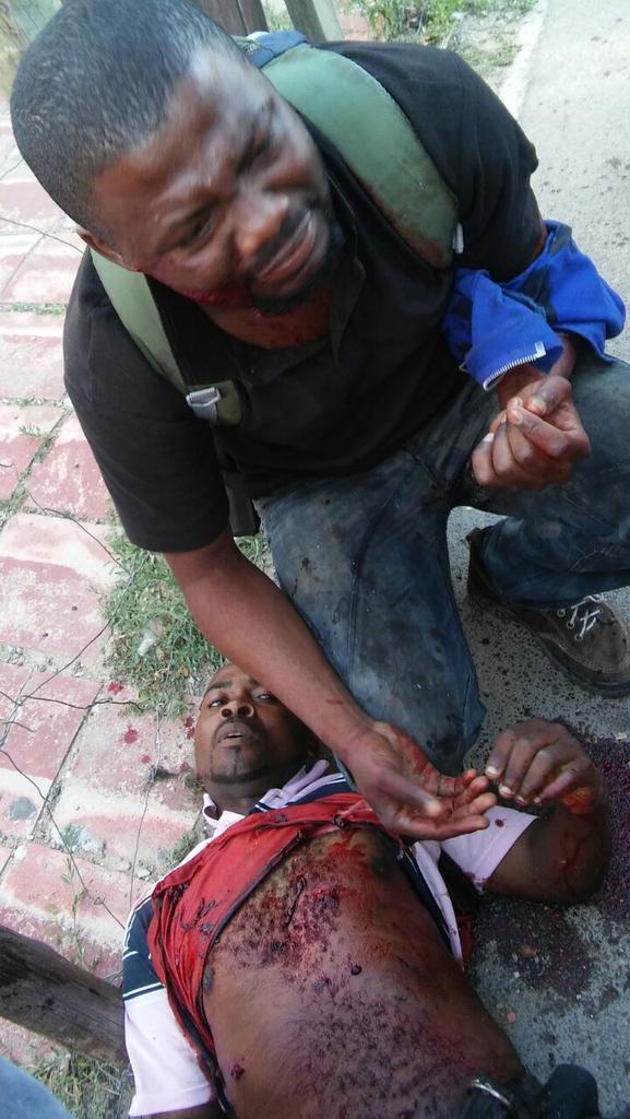#ChezMoiAuCongo les dirigeants sont muets tandis que nos frères sont victimes d&#39;attaques xénophobes à Johannesburg. (#Rip Massiossio Ovent) <br>http://pic.twitter.com/3kLZEf2Y22