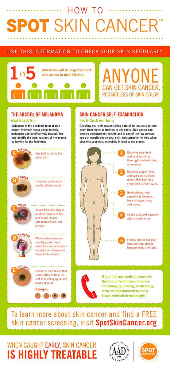 Retweet this infographic and help us teach others how to SPOT skin cancer: https://t.co/g7vBXUkYt2 #spotskincancer https://t.co/adJ2s99ZLZ