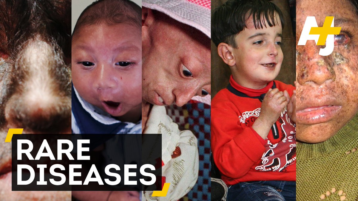 Here are 5 rare, incurable diseases you should know about