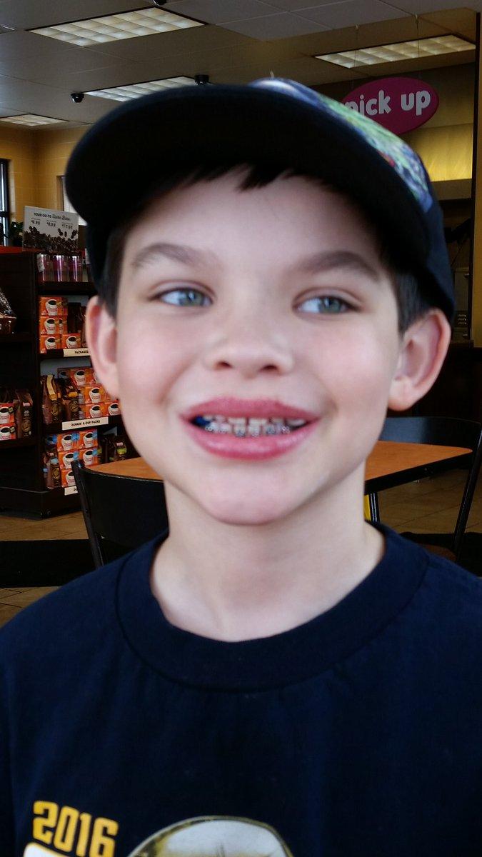 Teen boy braces suck — photo 3
