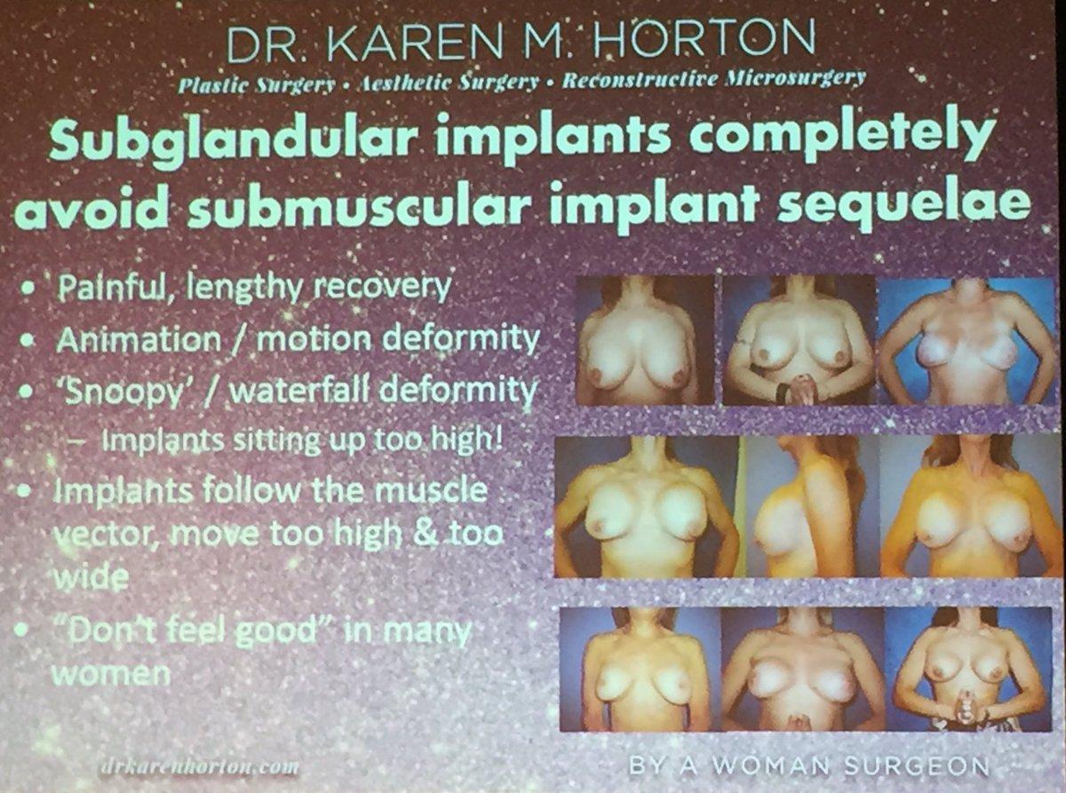 Subglandular breast augmentation photos