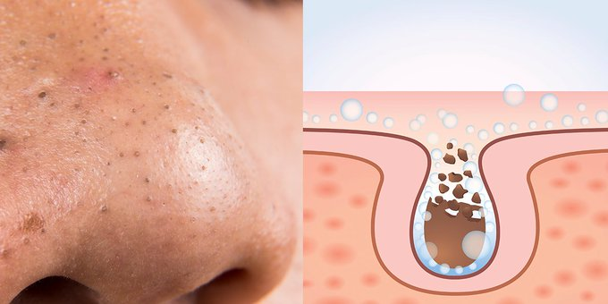 How To Get Rid Of Stubborn Blackheads On Your Nose