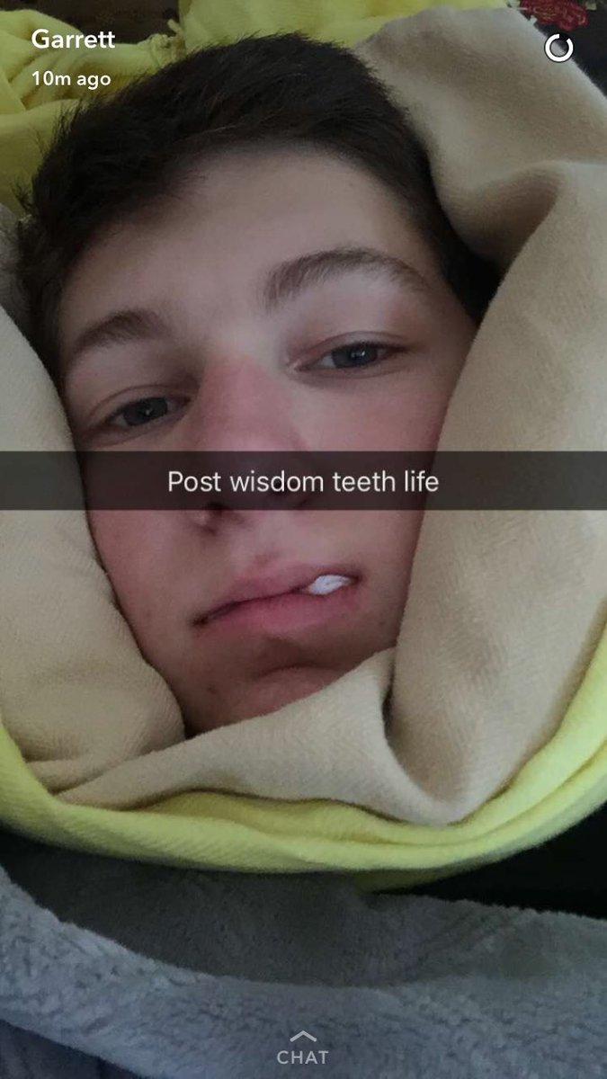 both my besties got their wisdom teeth taken out today😂