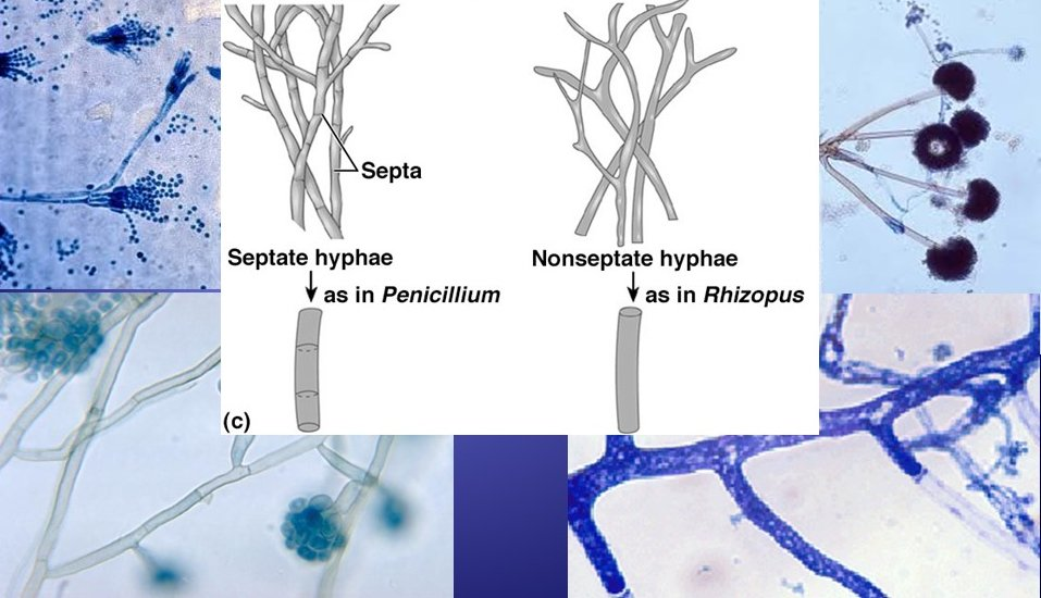 Los hongos con septos se consideran superiores (Penicillium) mientras que los cenocíticos (sin septo) inferiores (Rhizopus) #microMOOCSEM2 https://t.co/ZFlMenxnPP