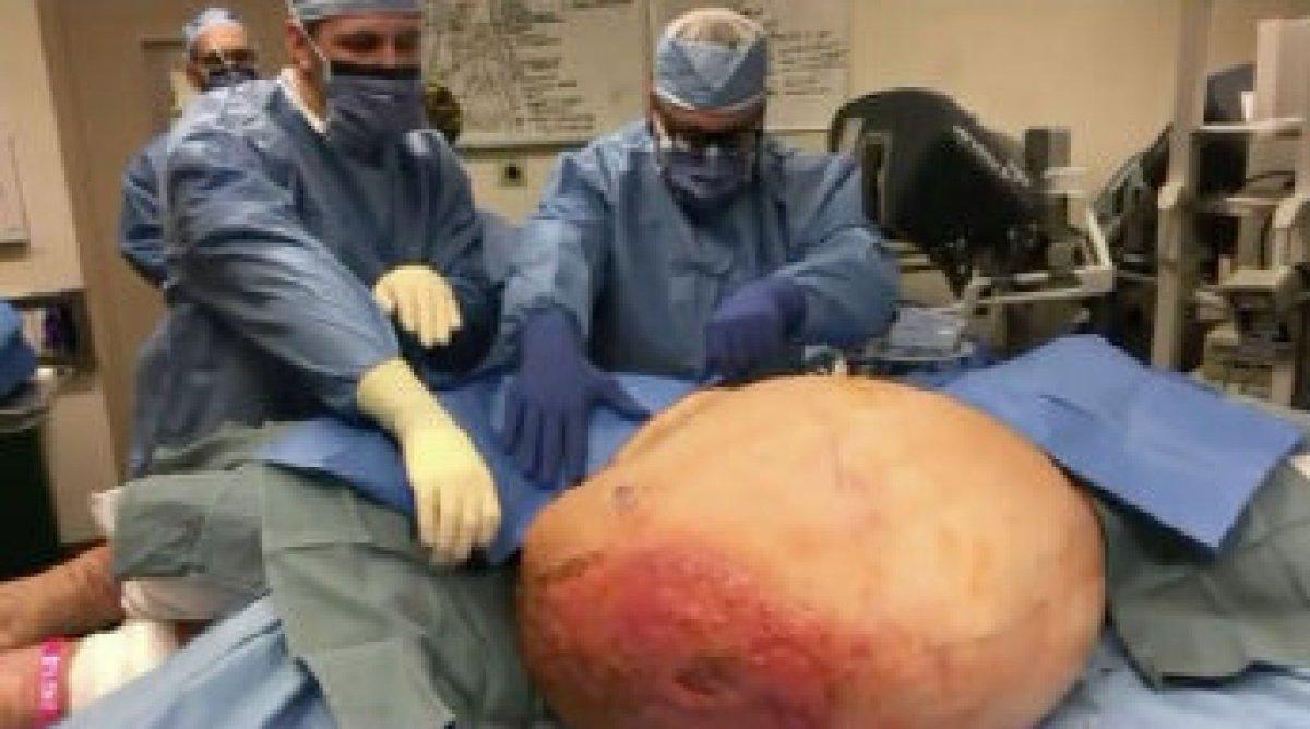 Medico estrae tumore del peso di 60 Kg a una donna