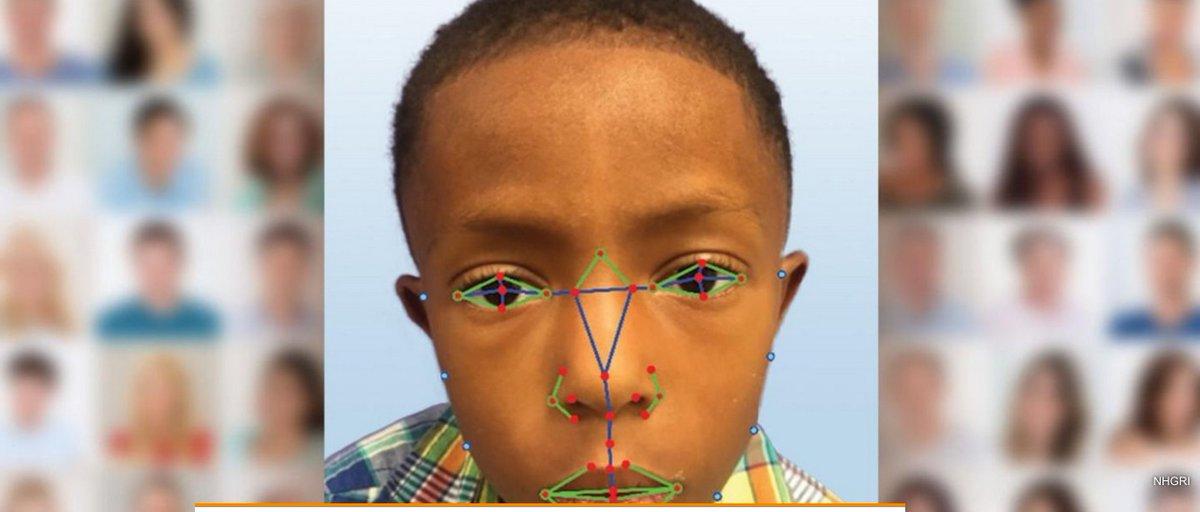 Une tendance identifiée au #CES2017 : La reconnaissance faciale aide à diagnostiquer des maladies rares  http:// hightech.bfmtv.com/epoque/la-reco nnaissance-faciale-aide-aussi-a-diagnostiquer-des-maladies-rares-1128753.html &nbsp; …   #hcsmeufr<br>http://pic.twitter.com/sDHYkui6oi