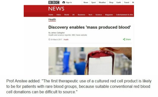 Biotechnology Is Cool...Very &quot;Bloody&quot; Cool!  http://www. bbc.com/news/health-39 354627 &nbsp; …  #SNRTG #BigData #RareDisease #blood #science #tech #biotech #technology<br>http://pic.twitter.com/Mom5iBtzOJ