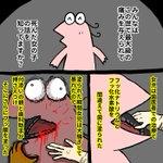 H市歯科医師フッ化水素酸誤塗布事件  いままでのまとめ→blog.livedoor.jp/nannjyakiu/