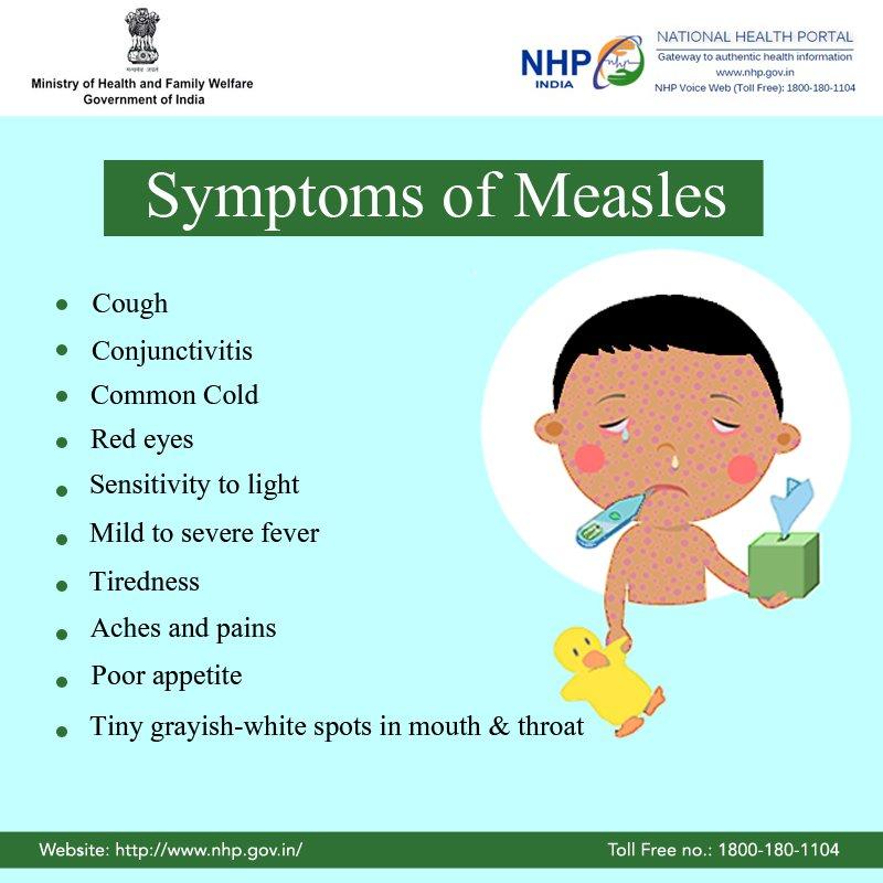 "national health por. on twitter: ""the common symptoms of measles, Cephalic Vein"