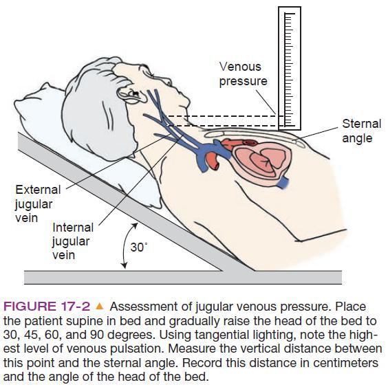 jugular vein pressure - 564×563