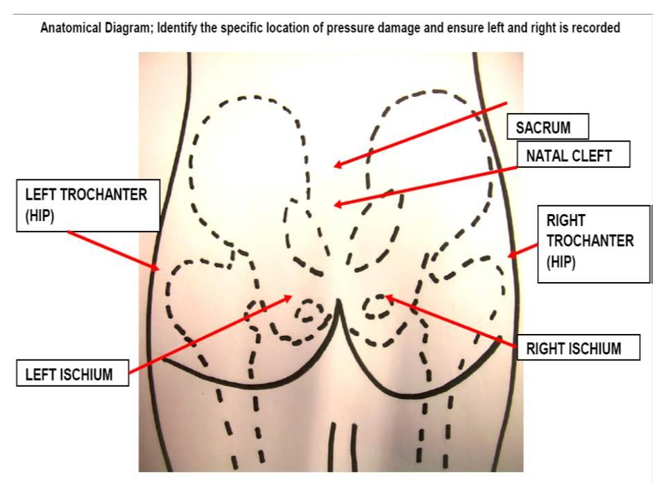 Yalda On Twitter Pressure Ulcer Prevention Helpful Partial