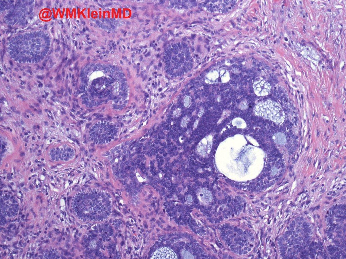 #trichoblastoma hashtag on Twitter  #trichoblastoma...