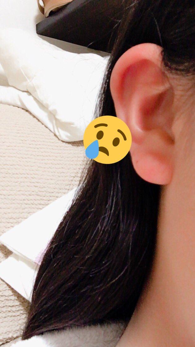 耳たぶ 痒い