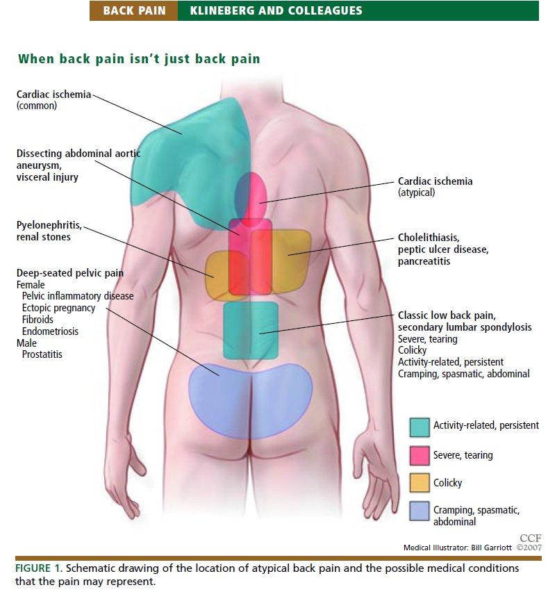 Gastritis pain location diagram