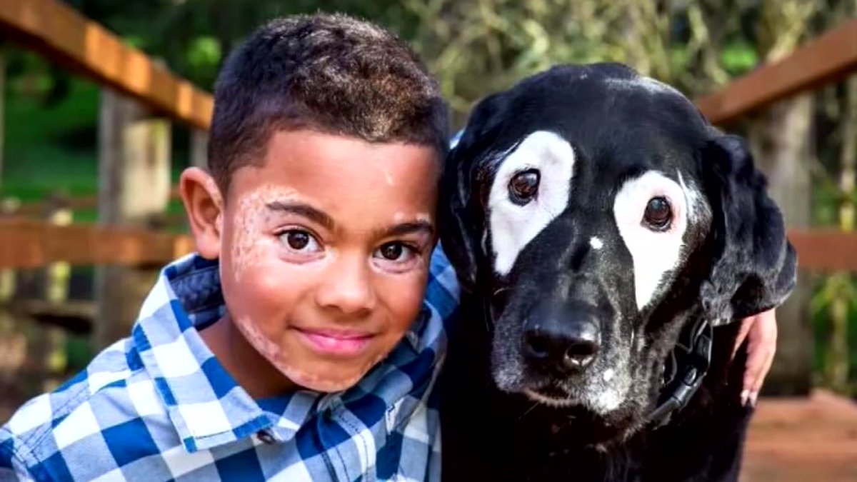 8-year-old with rare skin condition finds new best friend - a dog with the same condition https://t.co/au6aRyhEkk