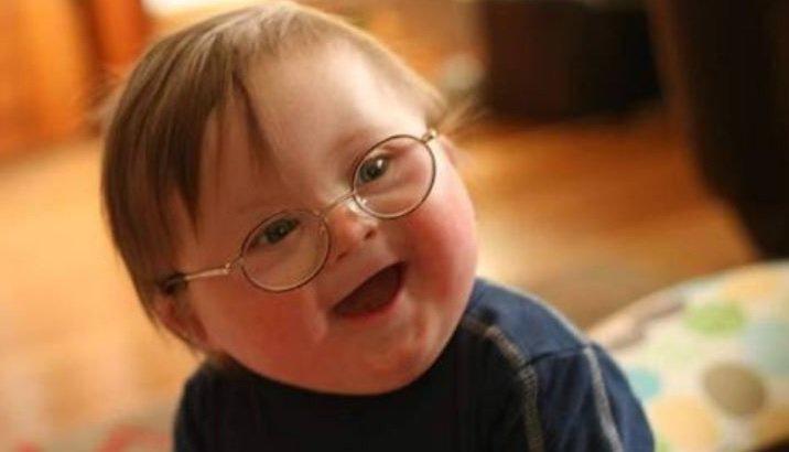 """""""Bir kromozom fark, bu kadar güzel mi yapar insanı?"""" #DownSendromu htt..."""