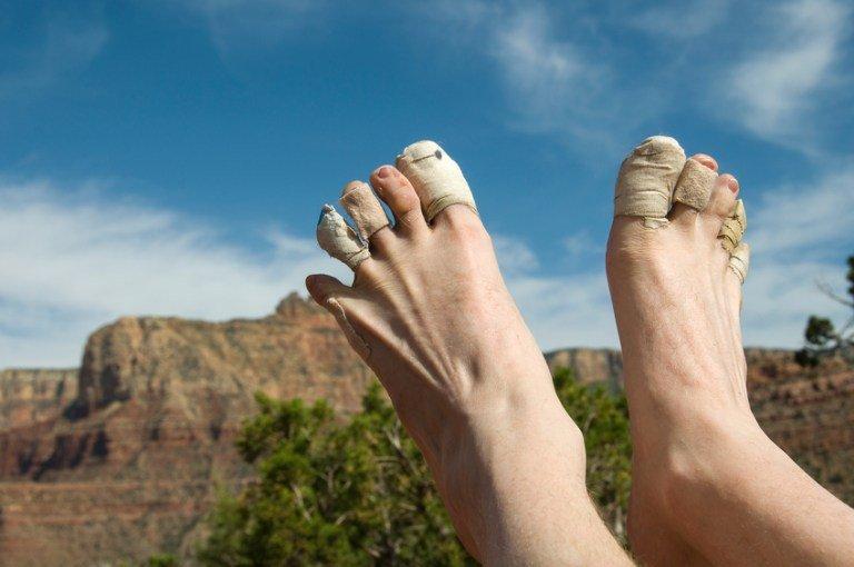 How to Treat Blisters https://t.co/wWMEjGPSfN How to treat blisters once and for all! #blisters #toptips #hiking #lotsafreshair
