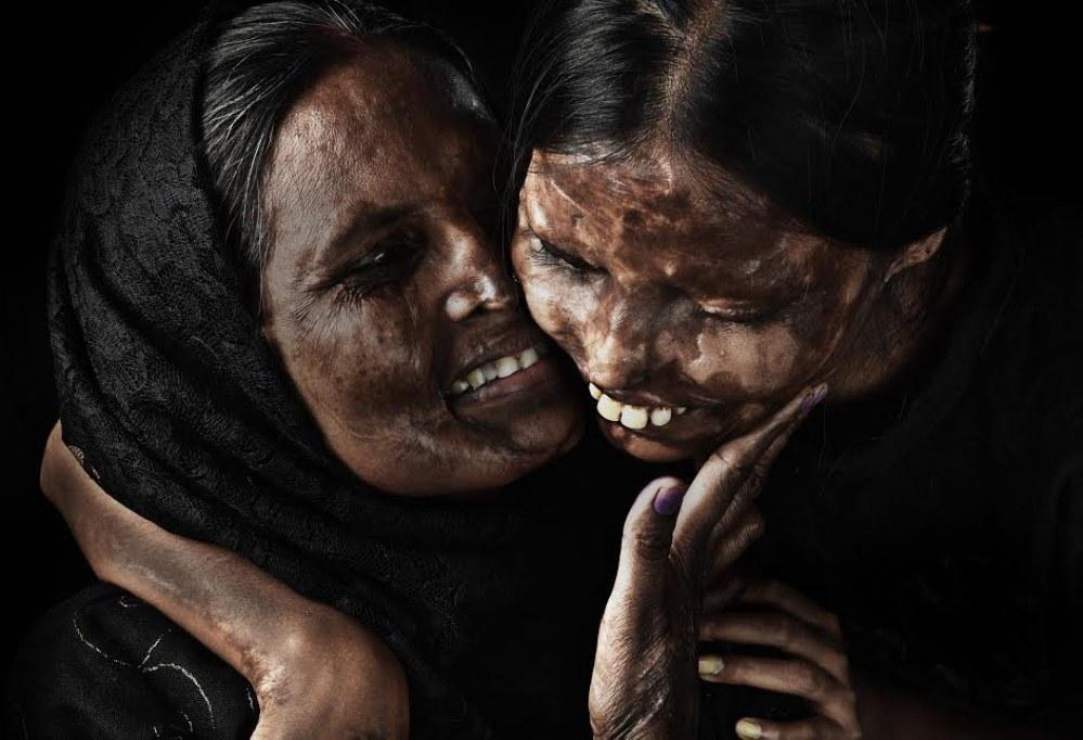 Le photographe @nirajgera met en lumière la #beauté des Indiennes victimes d&#39;attaques à l&#39;acide et c&#39;est magnifique &gt; http:// ebx.sh/2nUhijb  &nbsp;   <br>http://pic.twitter.com/ErBKkSle9E