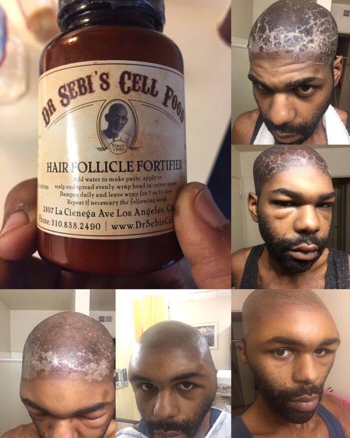 Hair follicle fortifier