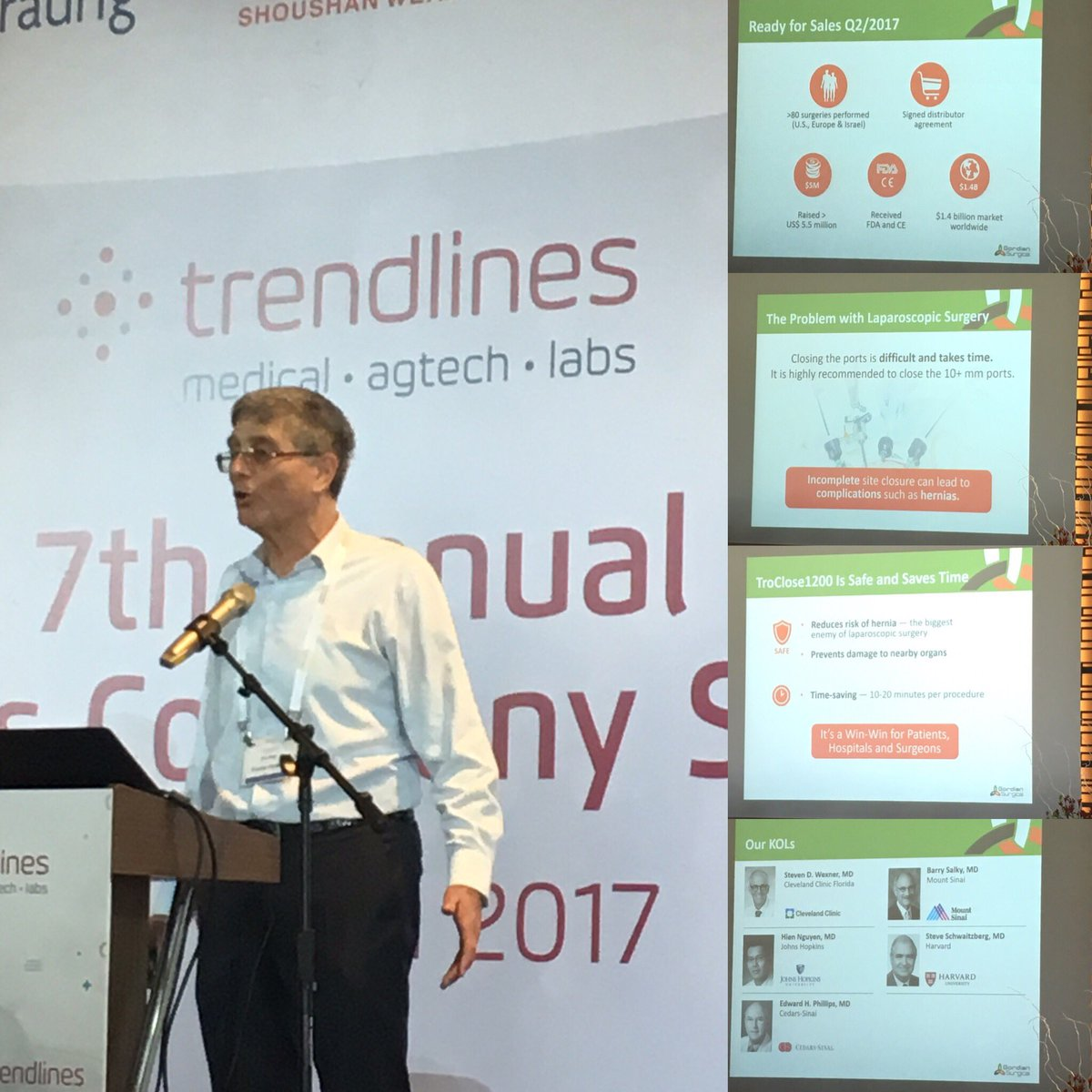 Zvi Peer CEO Gordian Surgical #laparoscopy autoclosing trochar CE marked FDA approved $5.5m raised #medtech #medicaldevice @TrendlinesGroup<br>http://pic.twitter.com/9fiCBHCdyW