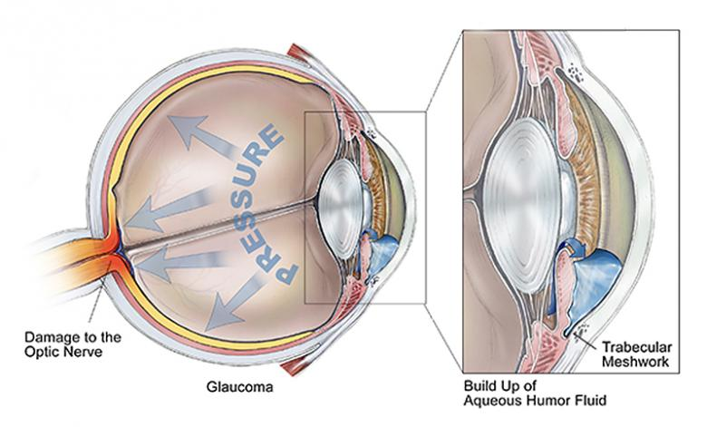 ... Garden State Eye Center. #eyehealth  Http://www.brightfocus.org/glaucoma/article/glaucoma And Importance Eyes Drainage System  U2026pic.twitter.com/DjvAL3nFCX