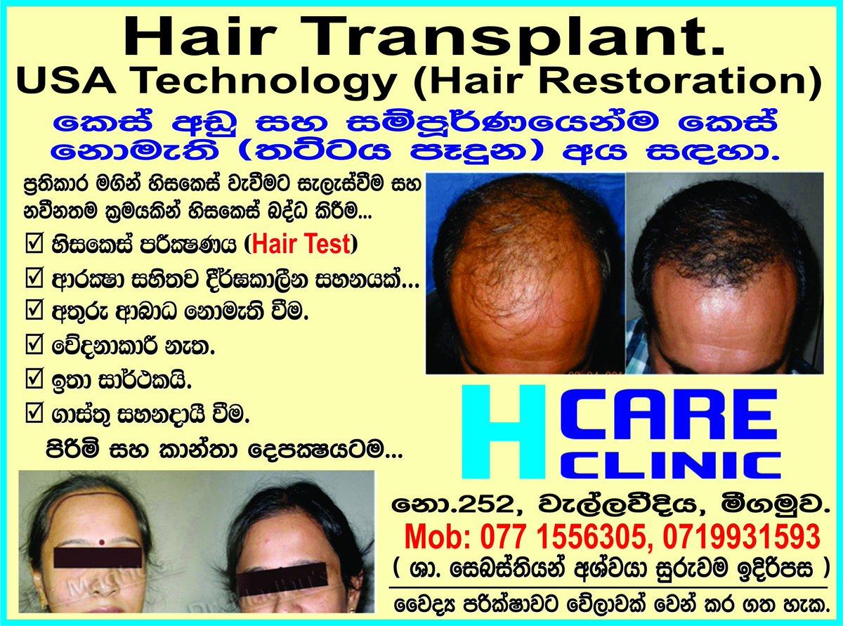 HAIR TRANSPLANT IN SRI LANKA photo